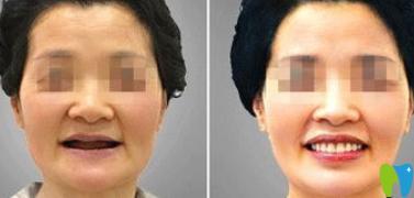 博爱口腔医院种植牙前后效果对比图