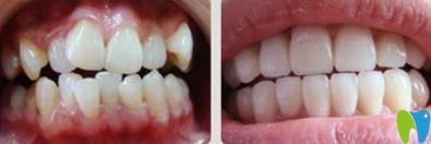 北京博爱口腔牙齿矫正前后效果对比图