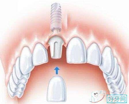 经常牙痛怎么办?经常牙痛的原因了解一下!