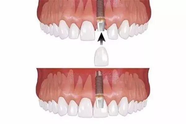 种植牙术前准备