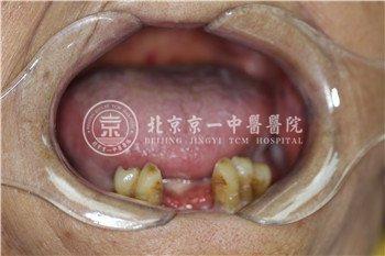 北京京一口腔种植牙案例